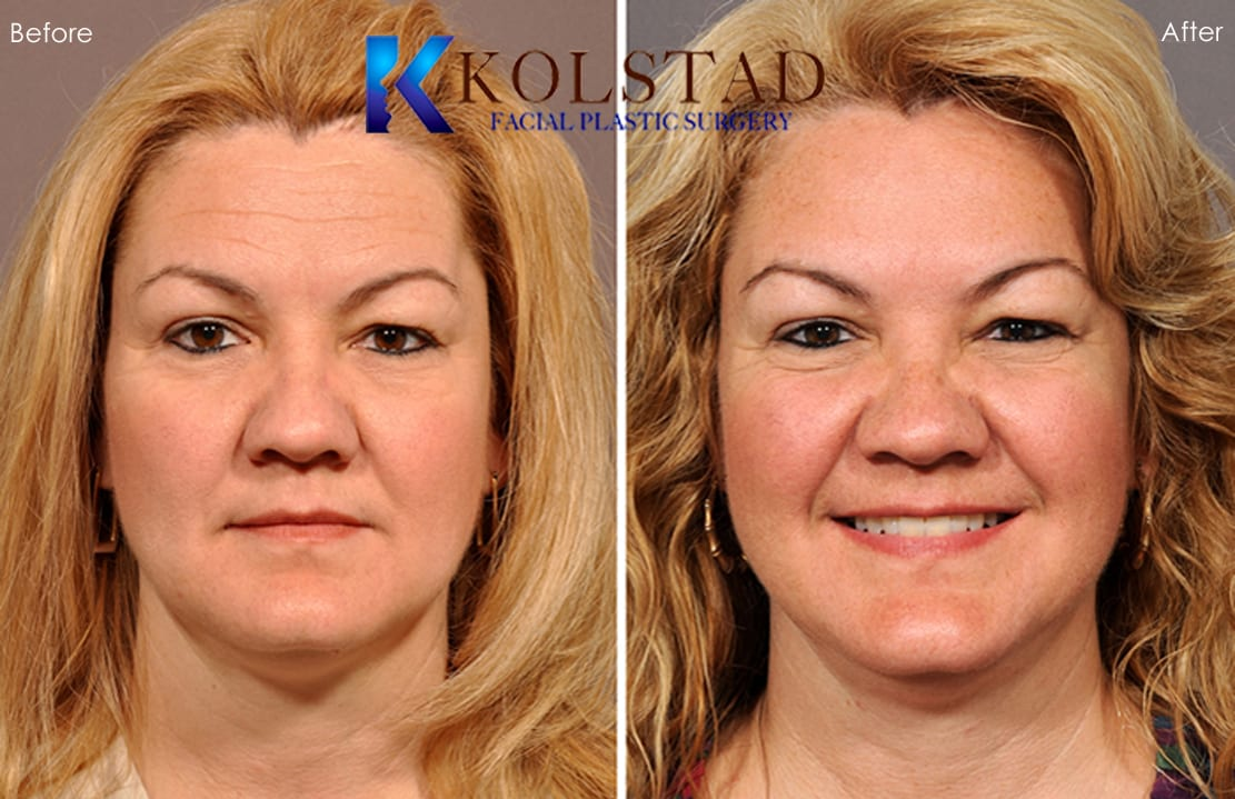 Botox Injectables Before & After Gallery - Dr. Kolstad ...