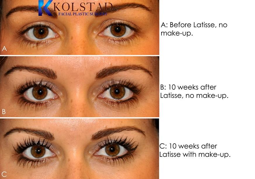 Latisse Eyelash Results - Dr. Kolstad - San Diego Facial ...