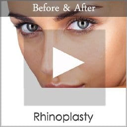rhinoplasty before and after results