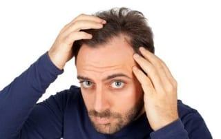 hair loss san diego treatment
