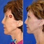 mohs skin cancer plastic surgeon san diego