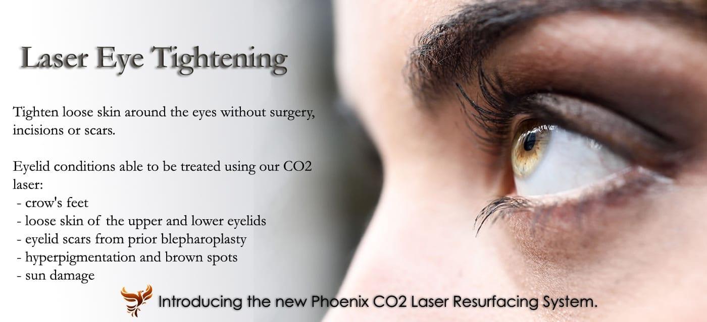 laser eye tightening