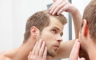 Men's Hair Loss La Jolla, CA
