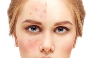 Acne scar removal san diego